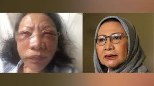 Menyebarkan Hoax, Ratna Sarumpaet Divonis 2 Tahun Penjara
