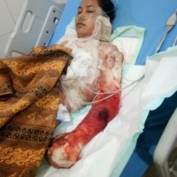 Marah, Suami di Lampung Tega Bakar Istri
